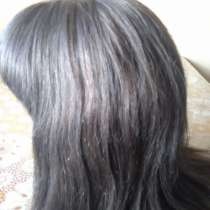 Система замещения волос, в Петропавловск-Камчатском